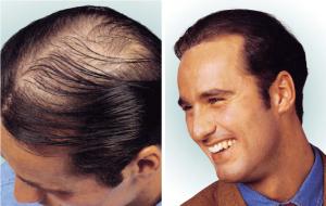 Hair implant Helsinki Turku Lahti