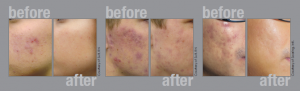 acne treatment laser