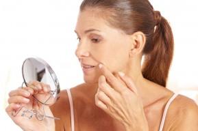 melasma pigmented lesions hyperpigmentation