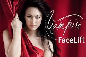 PRP vampire facelift