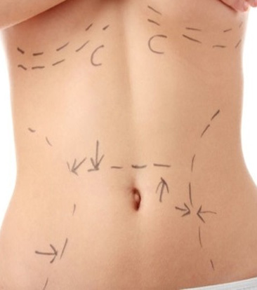 liposuction Helsinki Finland price
